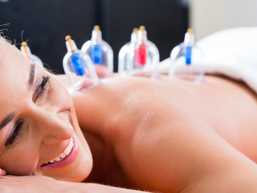A woman receiving decompression cupping therapy.